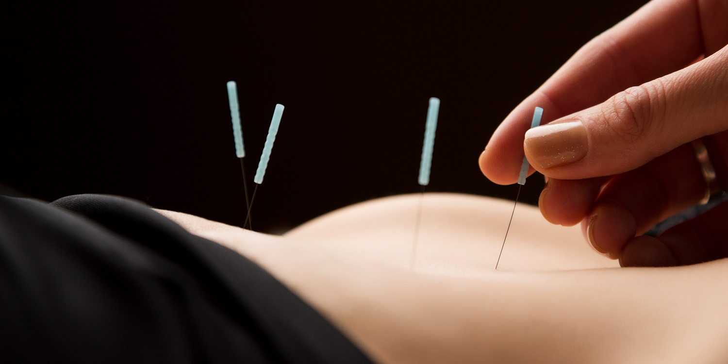 photo-manage-accupuncture